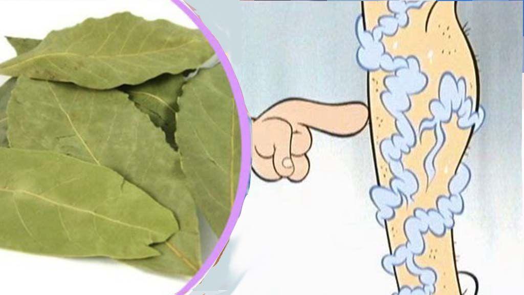 Pinworm felnőtteknél - tünetek és kezelés