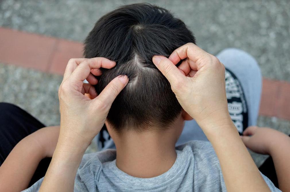 férgek kezelése gyermekeknél