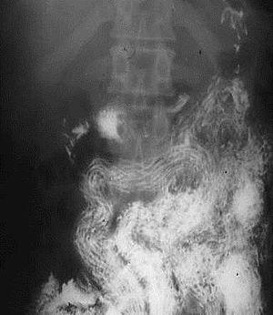 fascioliasis helminth