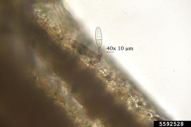 helminthosporium sp
