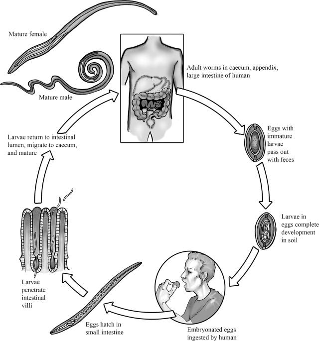 hookworm necatorosis trichocephalosis