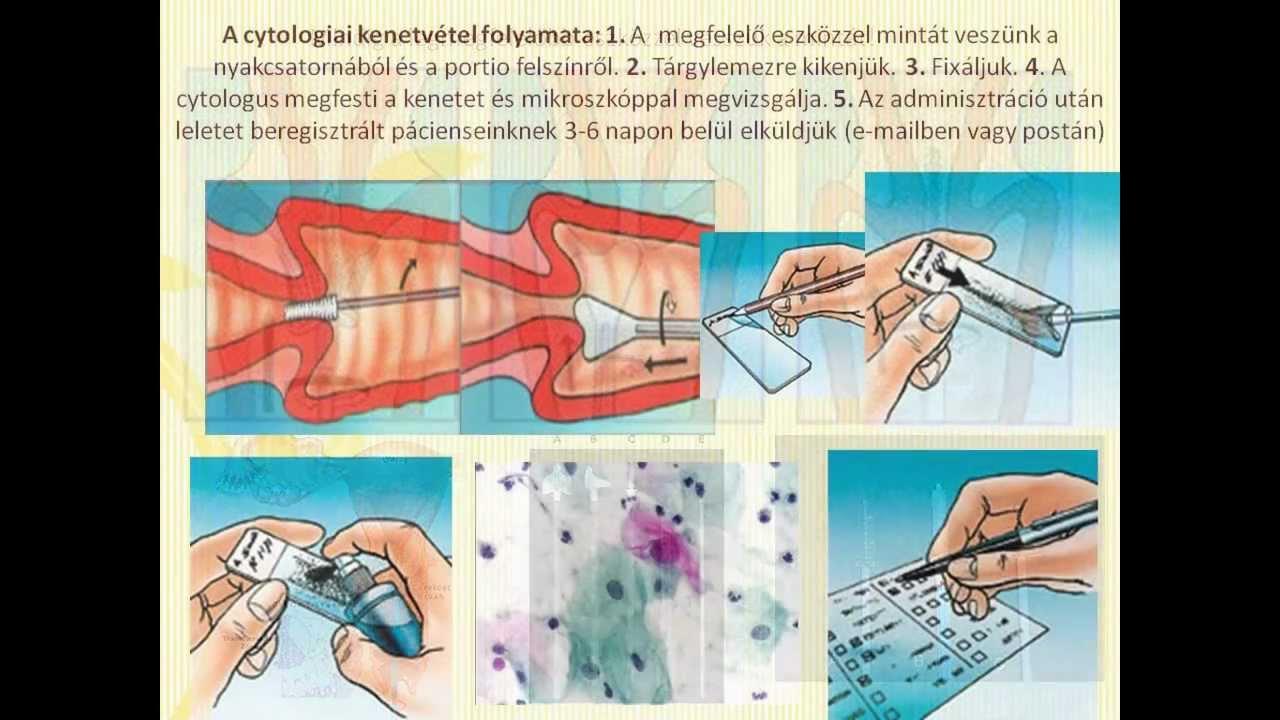 Kenet v transzkriptum mikroszkópos vizsgálata, Bőrkiütés parazitákkal