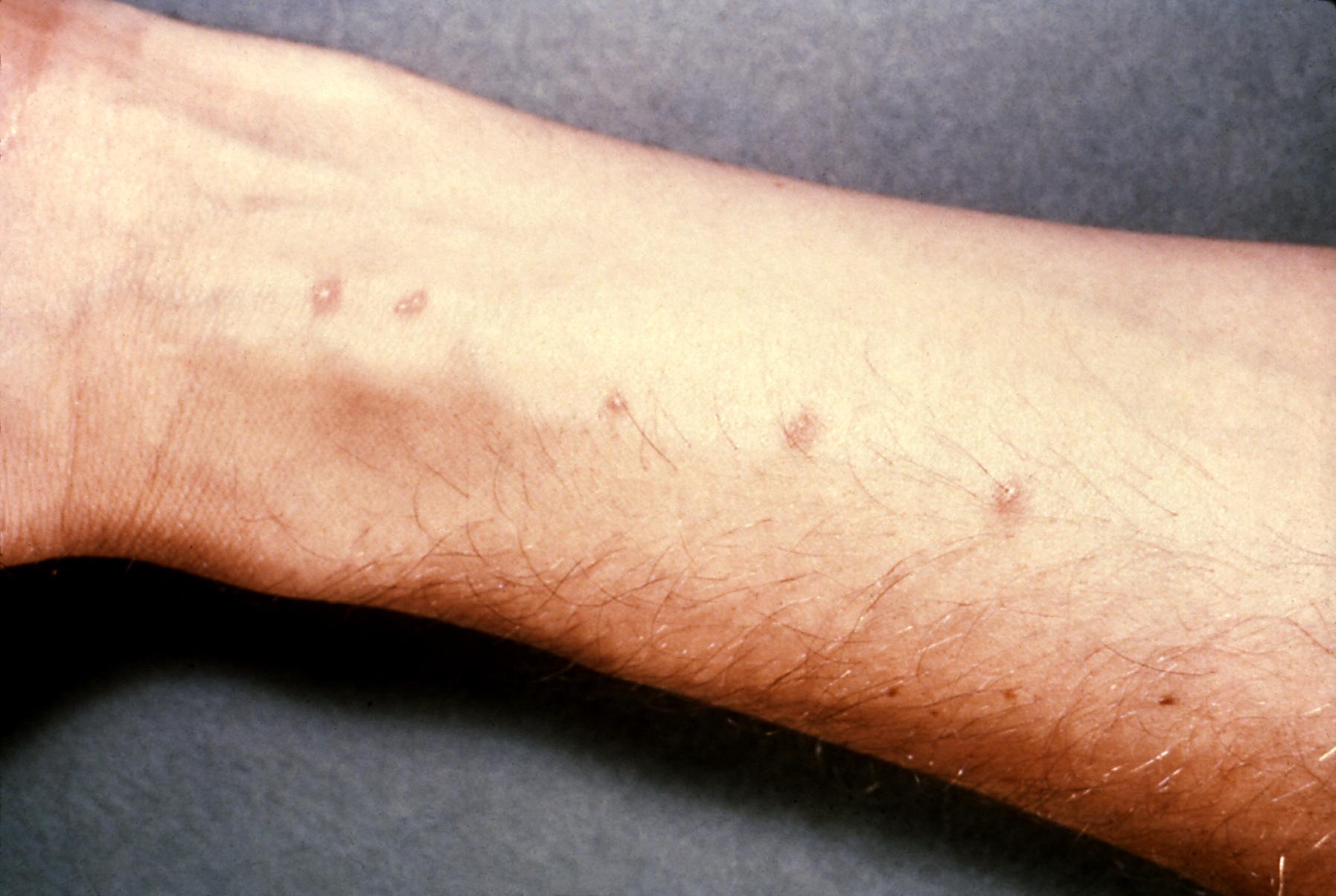 Giardia skin infection, Folliculitis