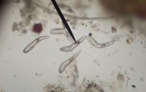 bél paraziták tojások