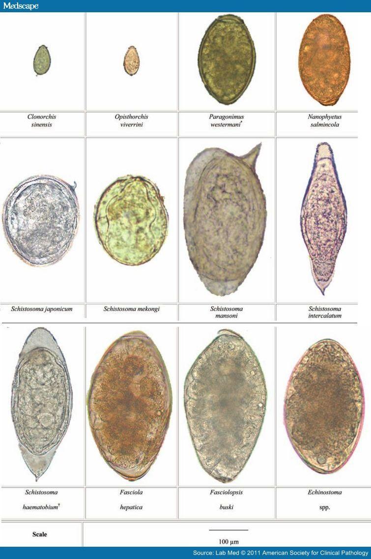 tojás fascioliasis