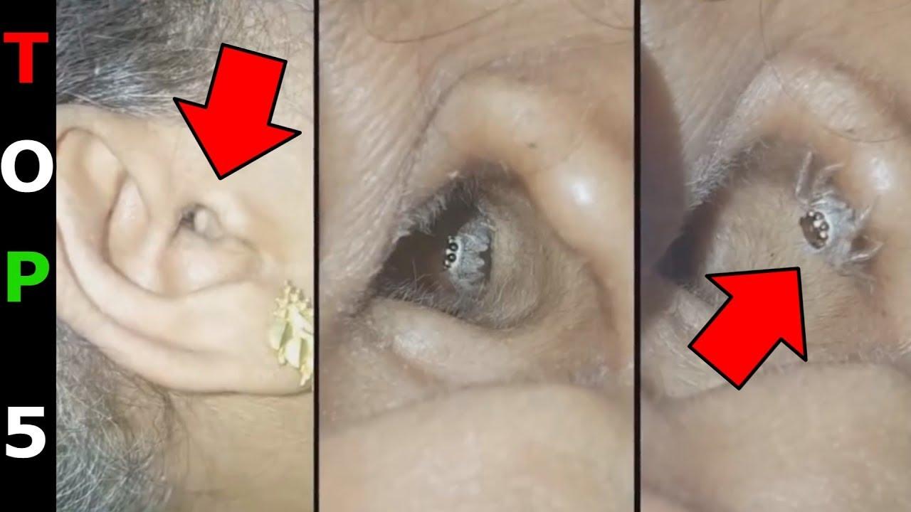 Fergek a testben video Fergesseg elleni gyogyszer