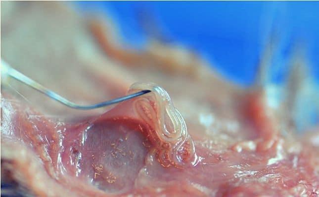 Hüvelygyulladás tünetei és kezelése, Pinworm kezelés a hüvelyben
