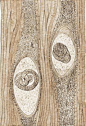 hosszú férgek egy gyermekben tisztítás a parazitákról cal