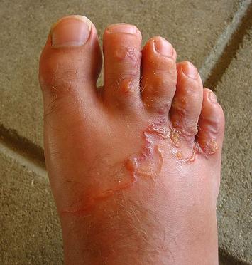 a bőrből eltávolított paraziták