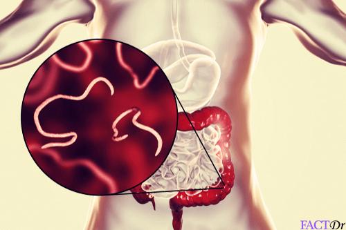 Pinworms kezelése: tünetek és gyógyszerek - Szövődmények March, Pinworm termékek