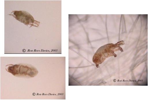 bőr paraziták uk étrend- kiegészítő az emberi test parazitáiból