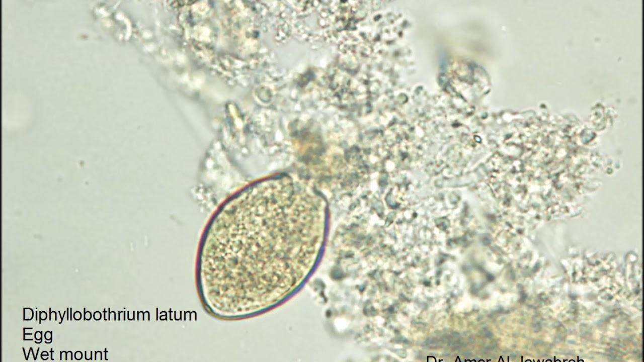 diphyllobothriasis élelmiszer higiénia