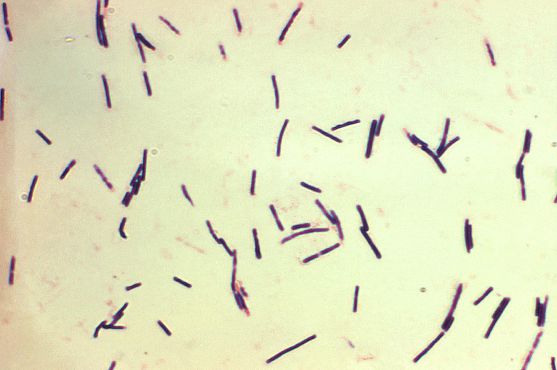 enterobiosis a klinikán hogyan kell inni parazitákból a rókagombák tinktúráját