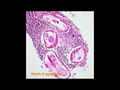 enterobiosis kód)