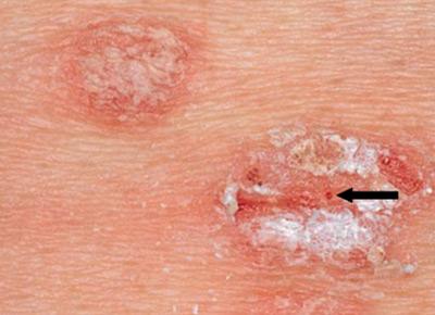 giardia skin lesions Helikészítmények férgekhez