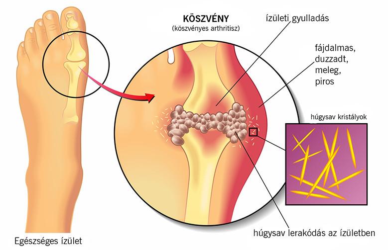E coli kenet férfiakban A húgyúti fertőzések laboratóriumi diagnosztikája és kezelése