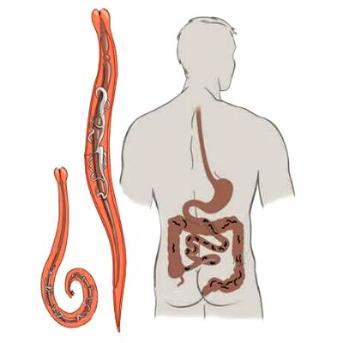 Paraziták a lép tüneteinek kezelésében - Paraziták az emberi lép tünetei és kezelése Enterobiasis