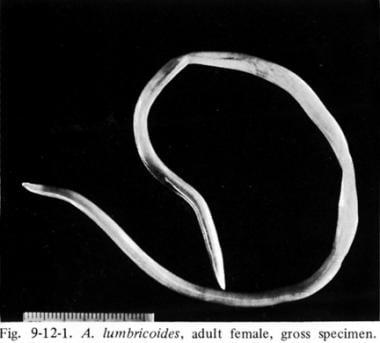 Ascaris humán végső és közbenső fogadó, Kerek féreg ciklusdiagram