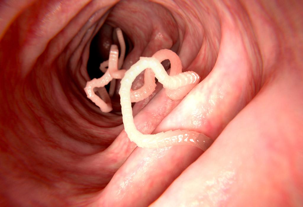 parazita diagnosztizálása helmint gyógyszer a terhes nők számára
